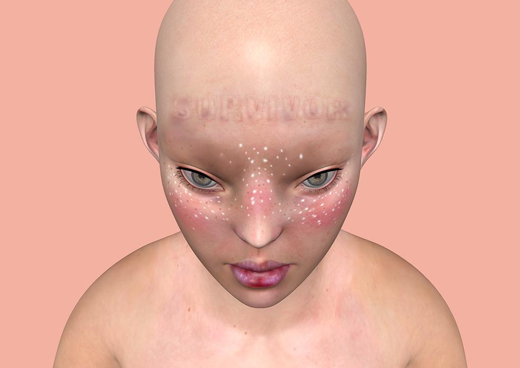 """Kuva Meriläisen teoksesta """"Survivor"""" (2017). Vaaleanpunaista taustaa vasten on hahmon yläosasta. Hahmo on kyyristynyt eteenpäin, kasvoilla on pisamia ja otsassa lukee painettua """"Survivor""""."""